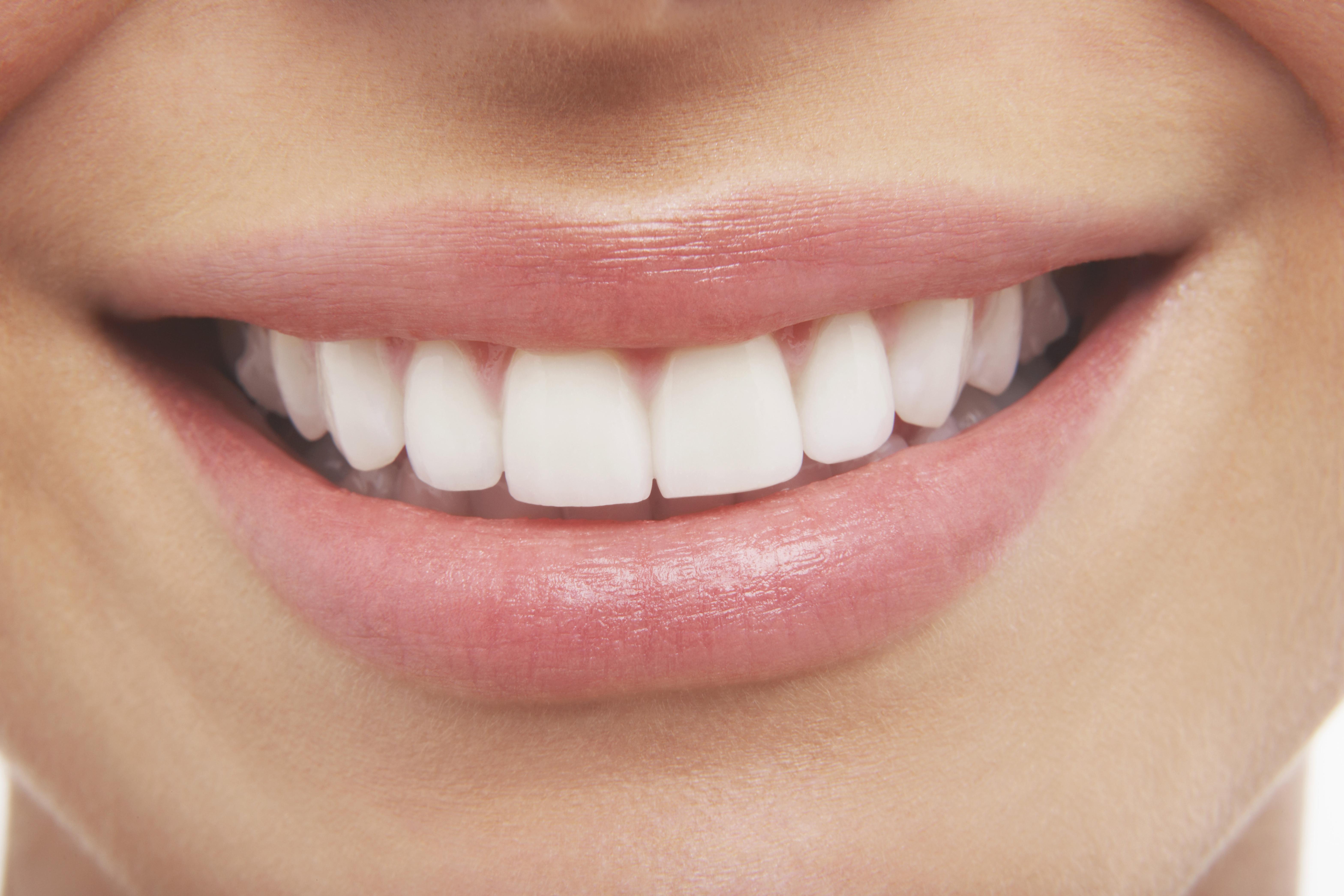 estetisk tandvård göteborg